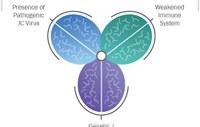 Care este conexiunea dintre Scleroza Multiplă și virusul JC?