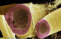 Celulele T și regenerarea mielinei